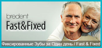 1gunde-implant-fast-fixed